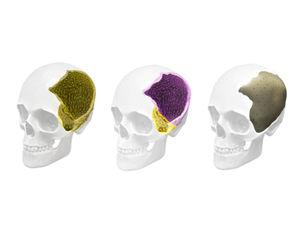 Stryker ID Cranial implants
